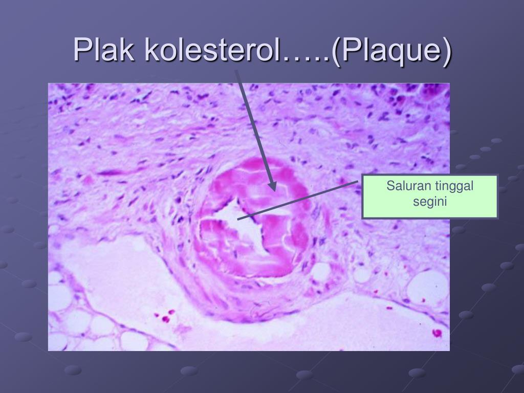 Plak kolesterol…..(Plaque)