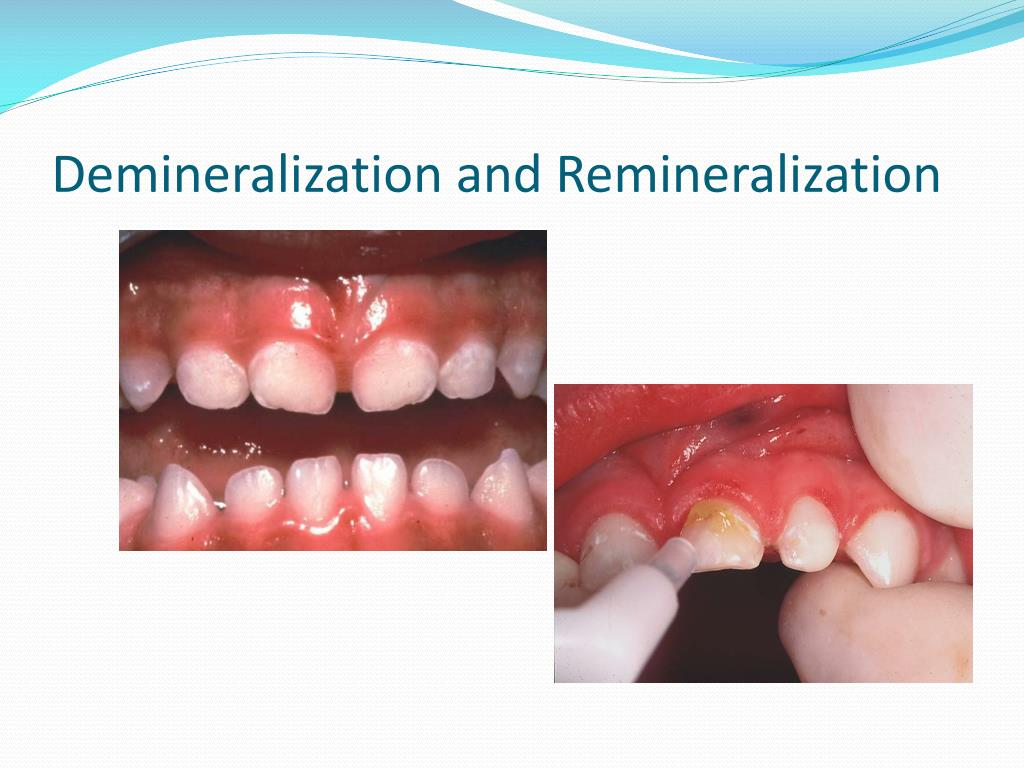 Ppt How To Apply Fluoride Varnish Powerpoint