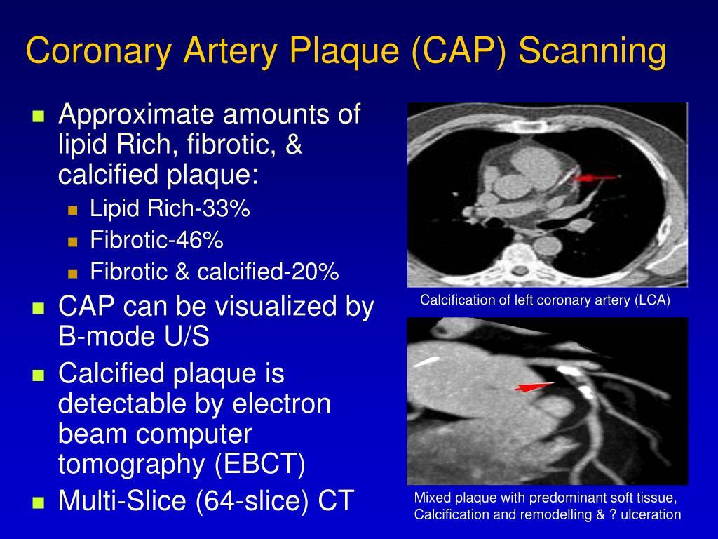 Coronary Artery Plaque (CAP) Scanning