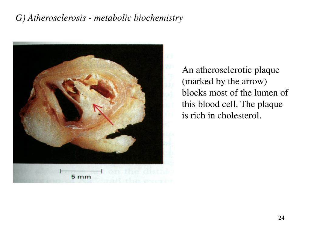 G) Atherosclerosis - metabolic biochemistry