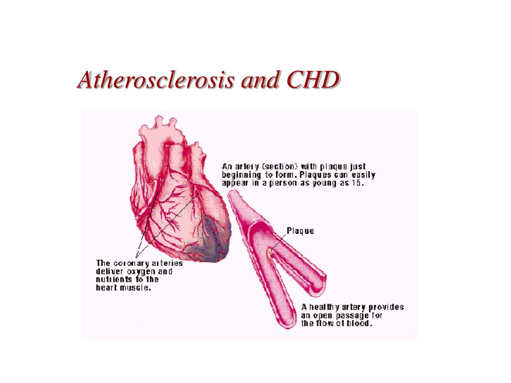 Atherosclerosis and CHD