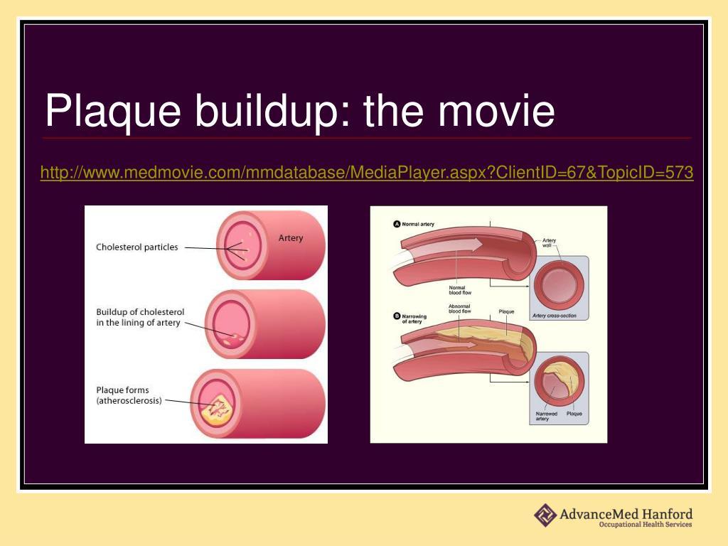 Plaque buildup: the movie