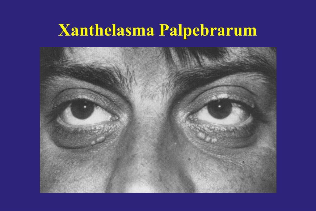 Xanthelasma Palpebrarum
