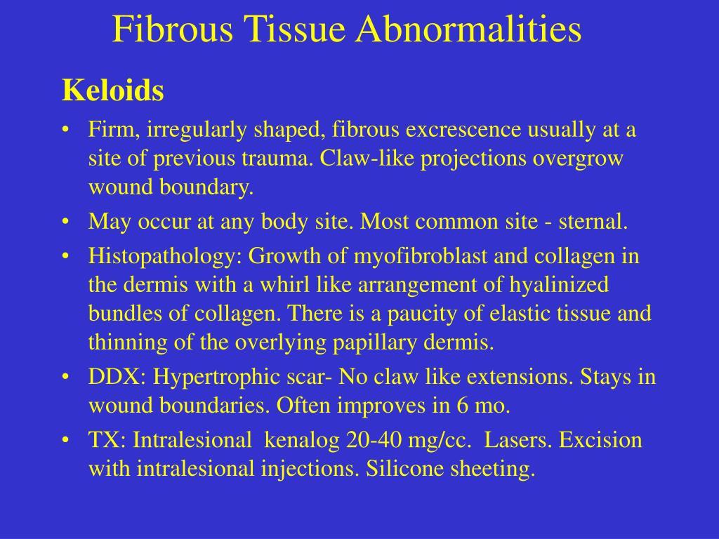 Fibrous Tissue Abnormalities