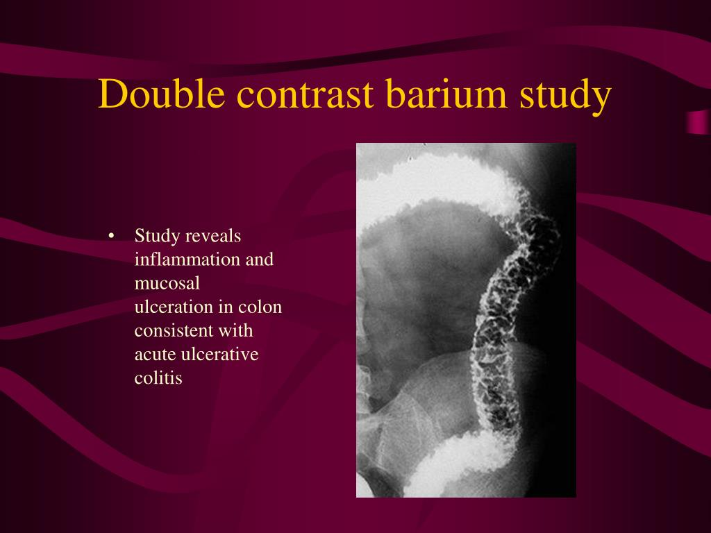Double contrast barium study