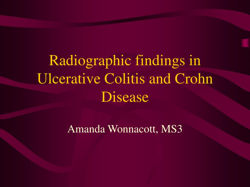Radiographic findings in Ulcerative Colitis and Crohn Disease