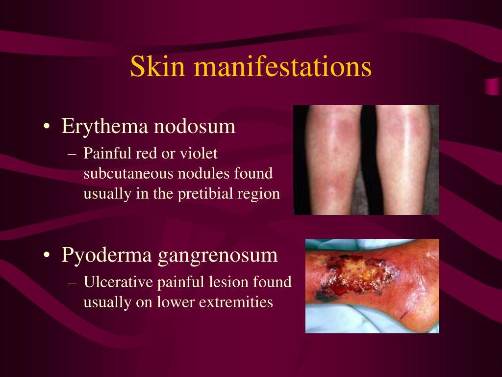 Skin manifestations