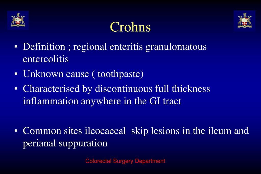 Crohns