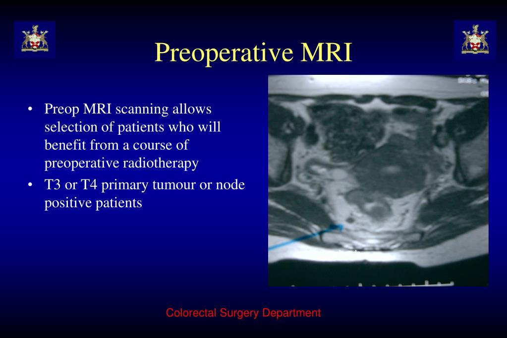 Preoperative MRI