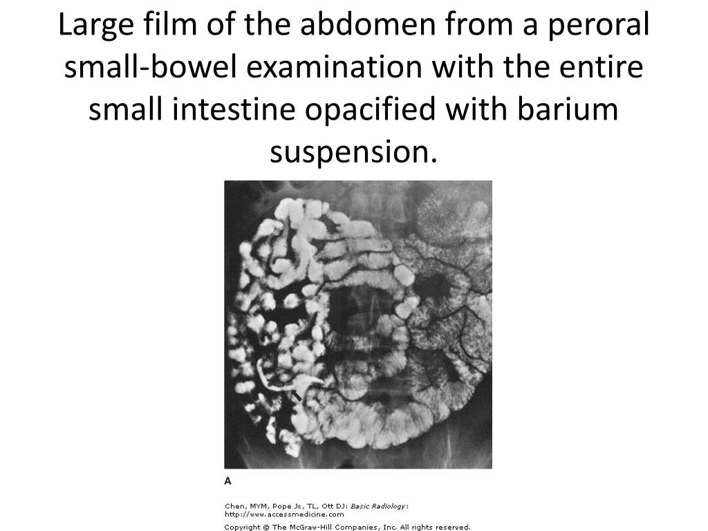 Large film of the abdomen from a peroral small-bowel examination with the entire small intestine opacified with barium suspension.