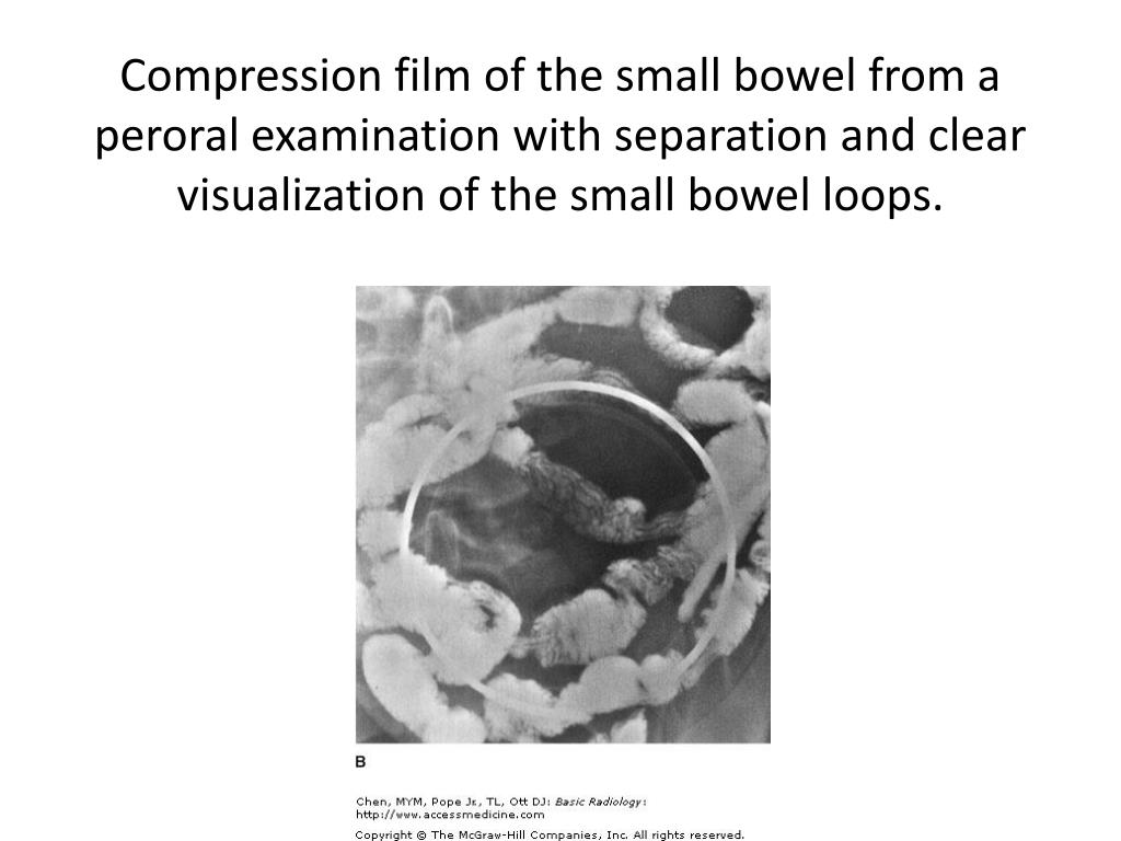 Compression film of the small bowel from a peroral examination with separation and clear visualization of the small bowel loops.