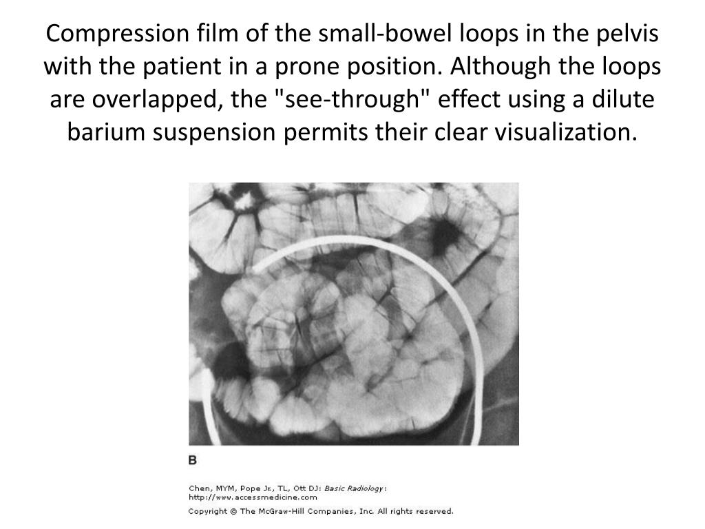 "Compression film of the small-bowel loops in the pelvis with the patient in a prone position. Although the loops are overlapped, the ""see-through"" effect using a dilute barium suspension permits their clear visualization."