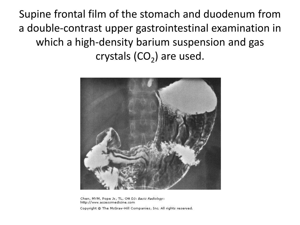 Supine frontal film of the stomach and duodenum from a double-contrast upper gastrointestinal examination in which a high-density barium suspension and gas crystals (CO