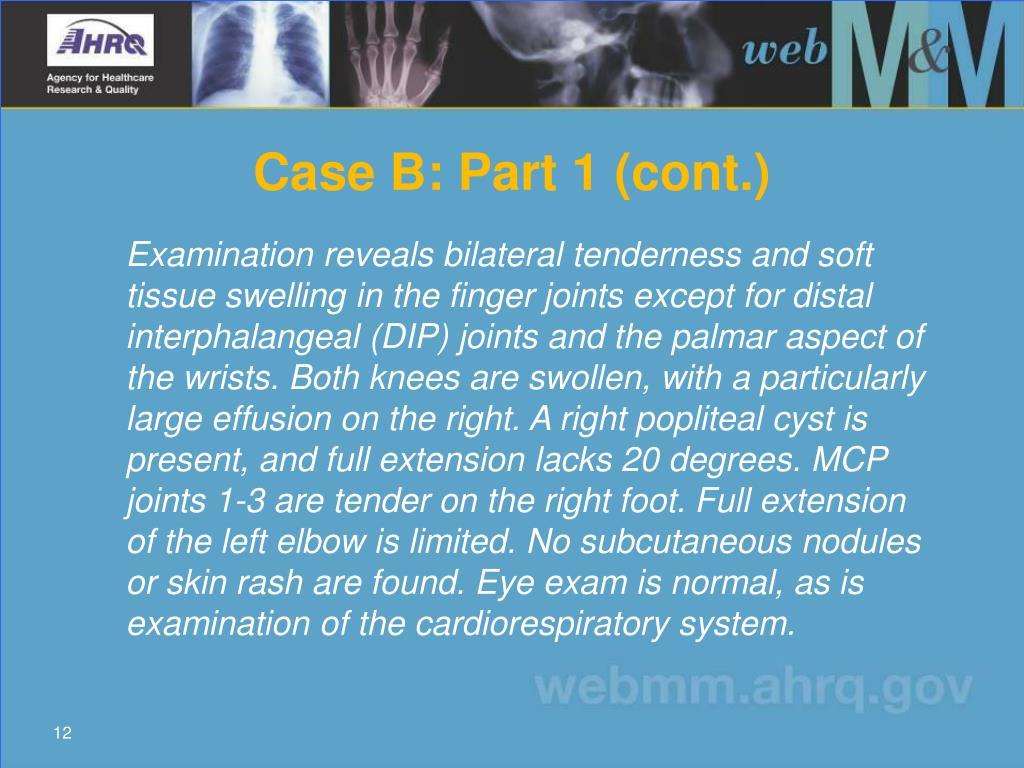 Case B: Part 1 (cont.)