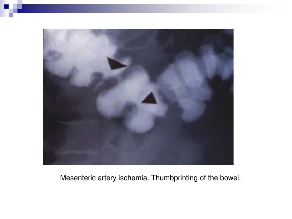 Mesenteric artery ischemia. Thumbprinting of the bowel.