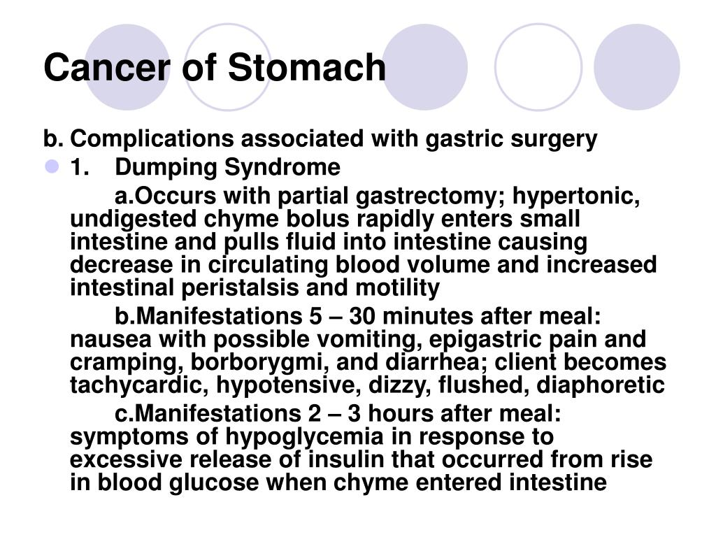 Cancer of Stomach