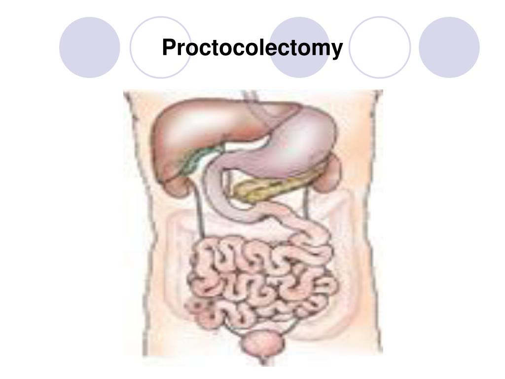 Proctocolectomy