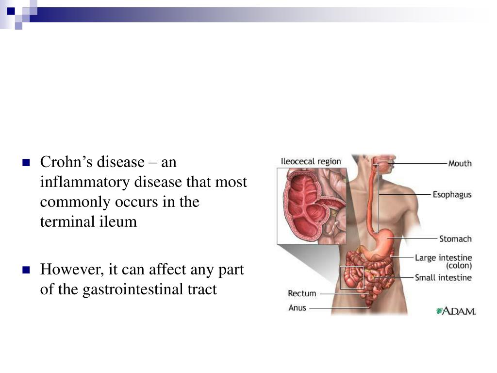 Crohn's disease – an inflammatory disease that most commonly occurs in the terminal ileum