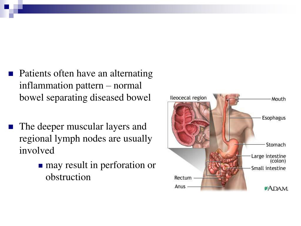 Patients often have an alternating inflammation pattern – normal bowel separating diseased bowel