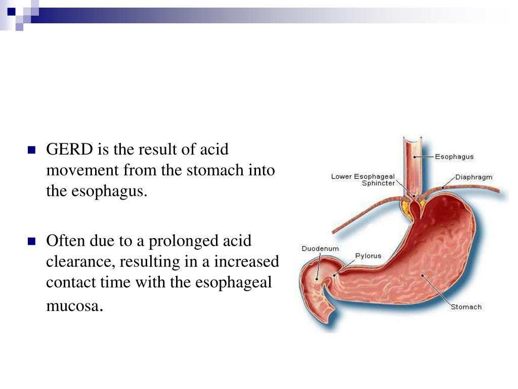 GERD is the result of acid movement from the stomach into the esophagus.