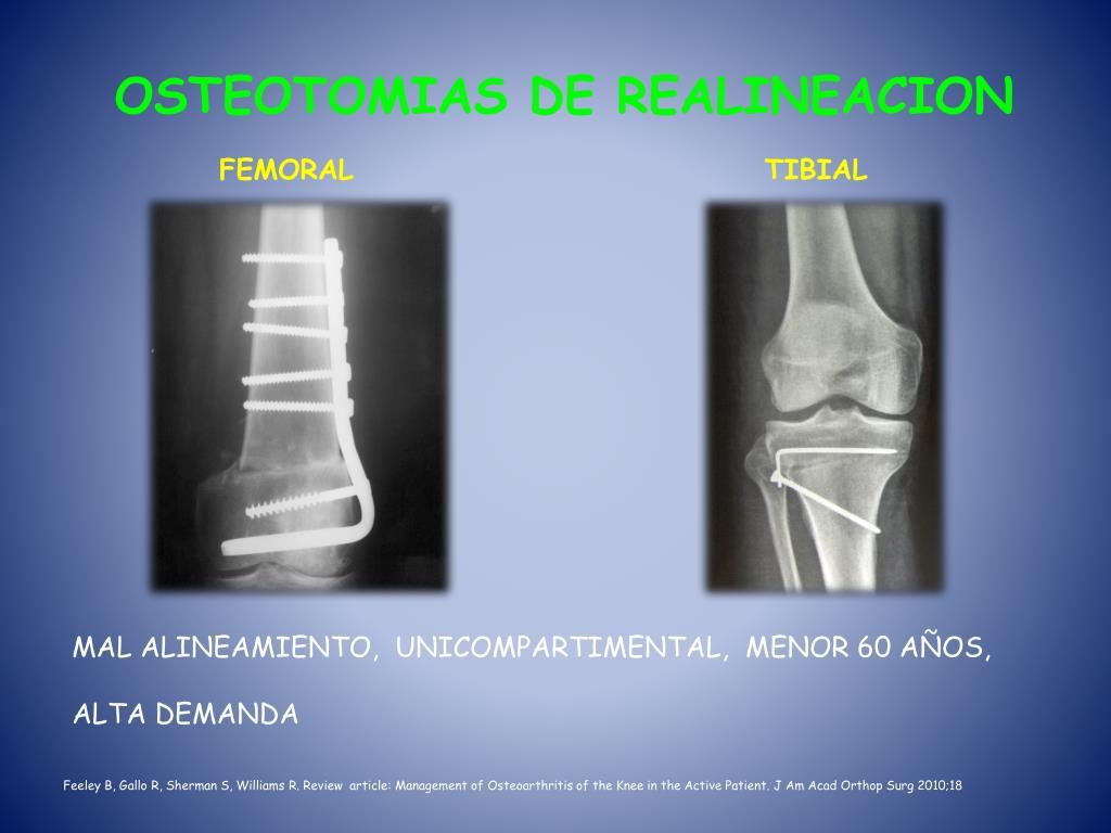 OSTEOTOMIAS DE REALINEACION