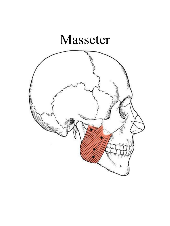 Masseter