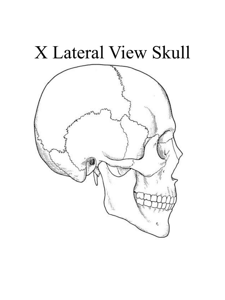 X lateral view skull