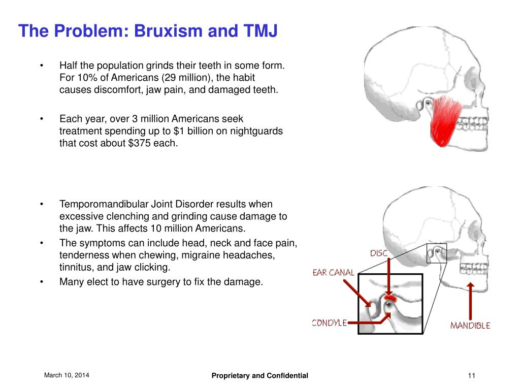 The Problem: Bruxism and TMJ