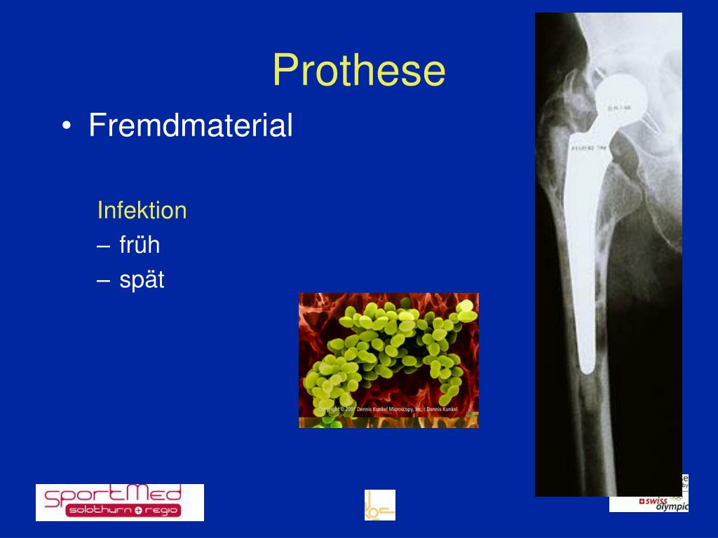 Prothese
