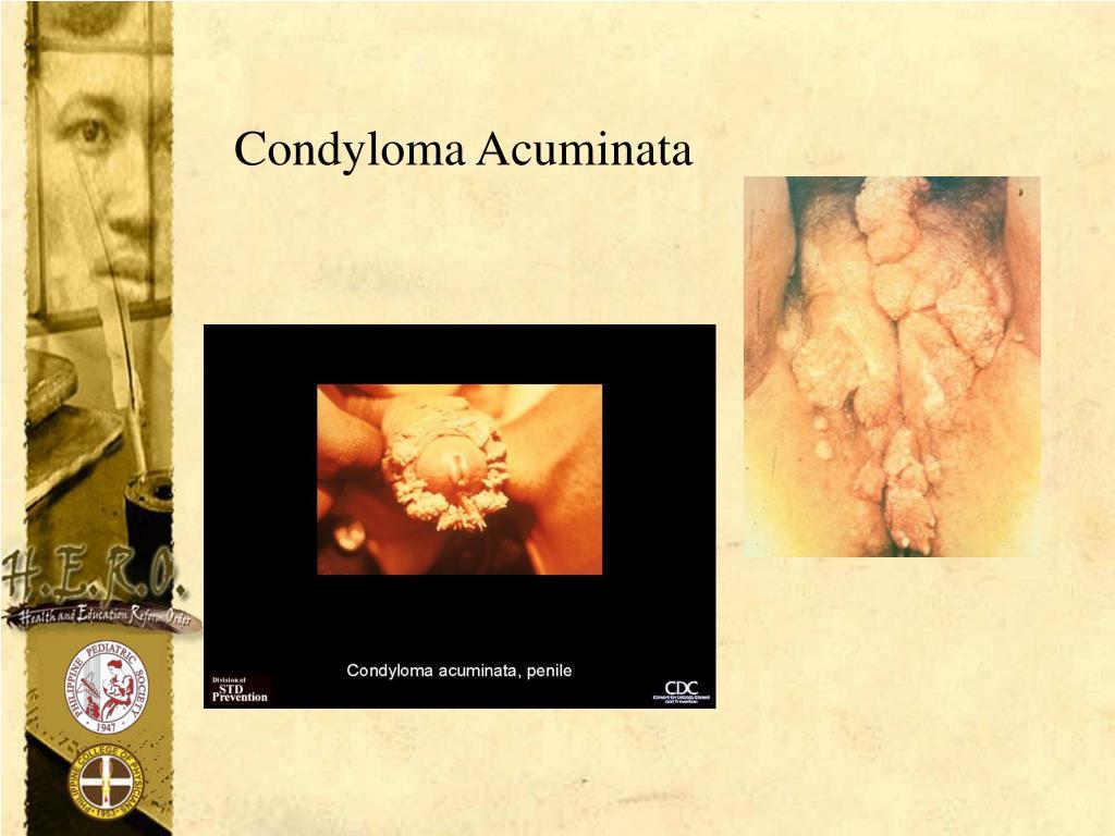 Condyloma Acuminata