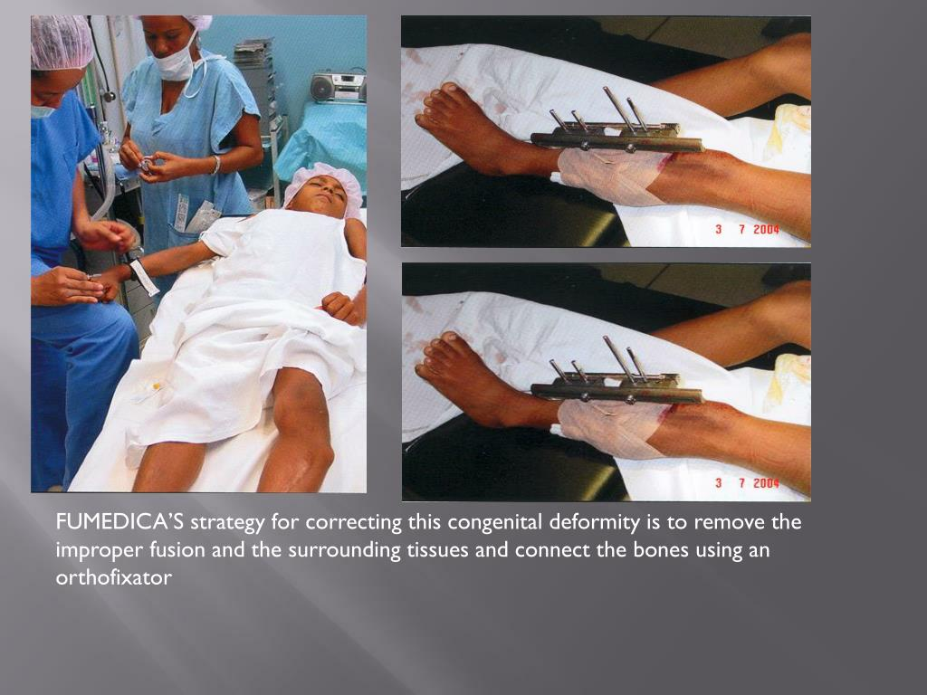 FUMEDICA'S strategy for correcting this congenital deformity is to remove the improper fusion and the surrounding tissues and connect the bones using an orthofixator