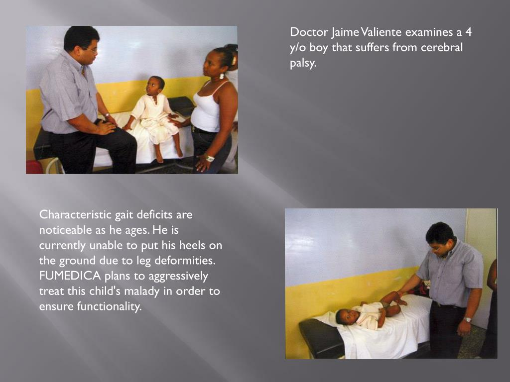Doctor Jaime Valiente examines a 4 y/o boy that suffers from cerebral palsy.