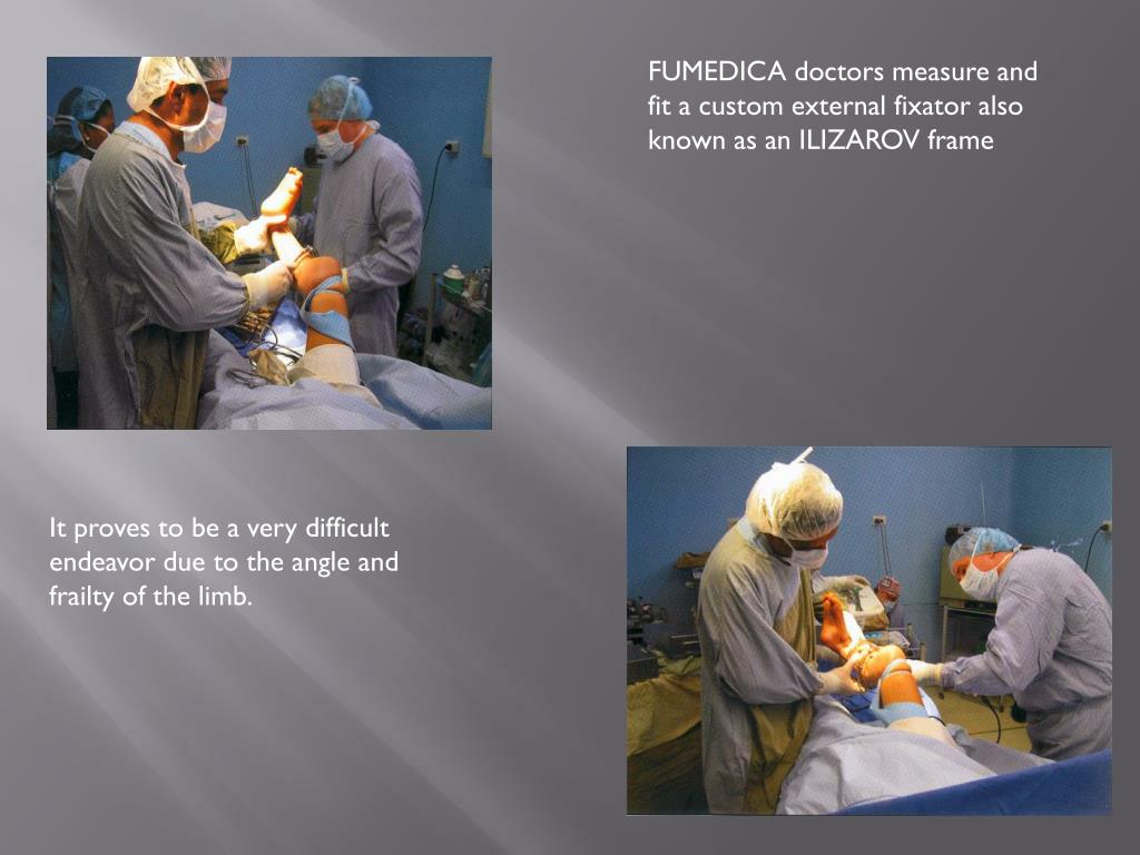 FUMEDICA doctors measure and fit a custom external fixator also known as an ILIZAROV frame