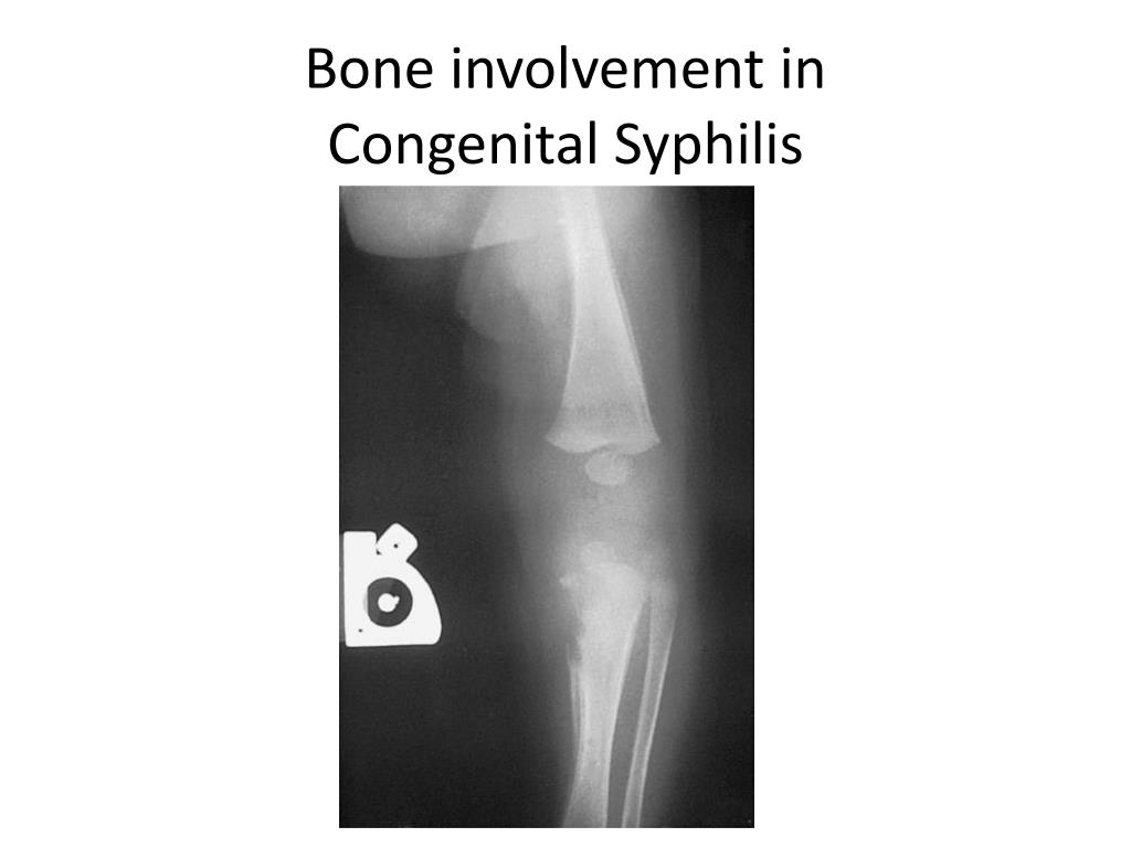 Bone involvement in