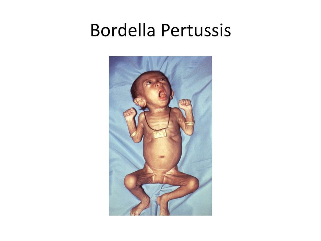 Bordella Pertussis