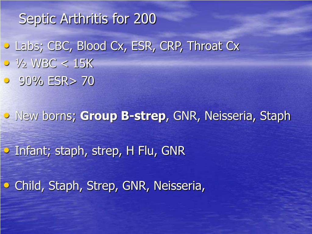 Septic Arthritis for 200