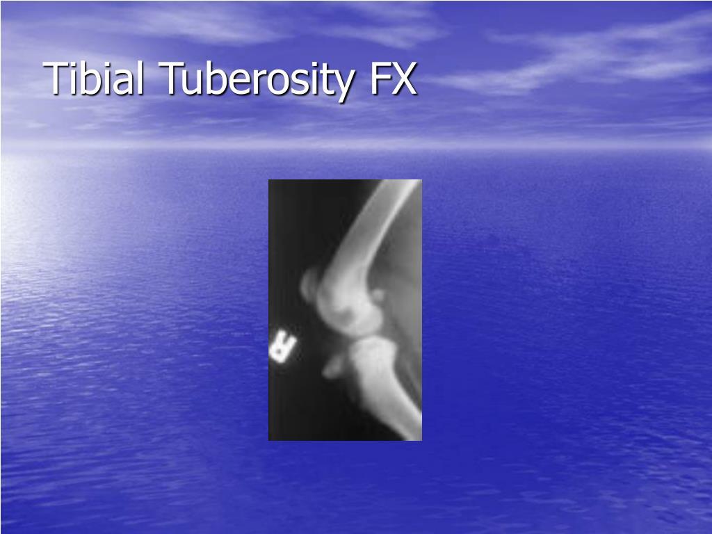 Tibial Tuberosity FX