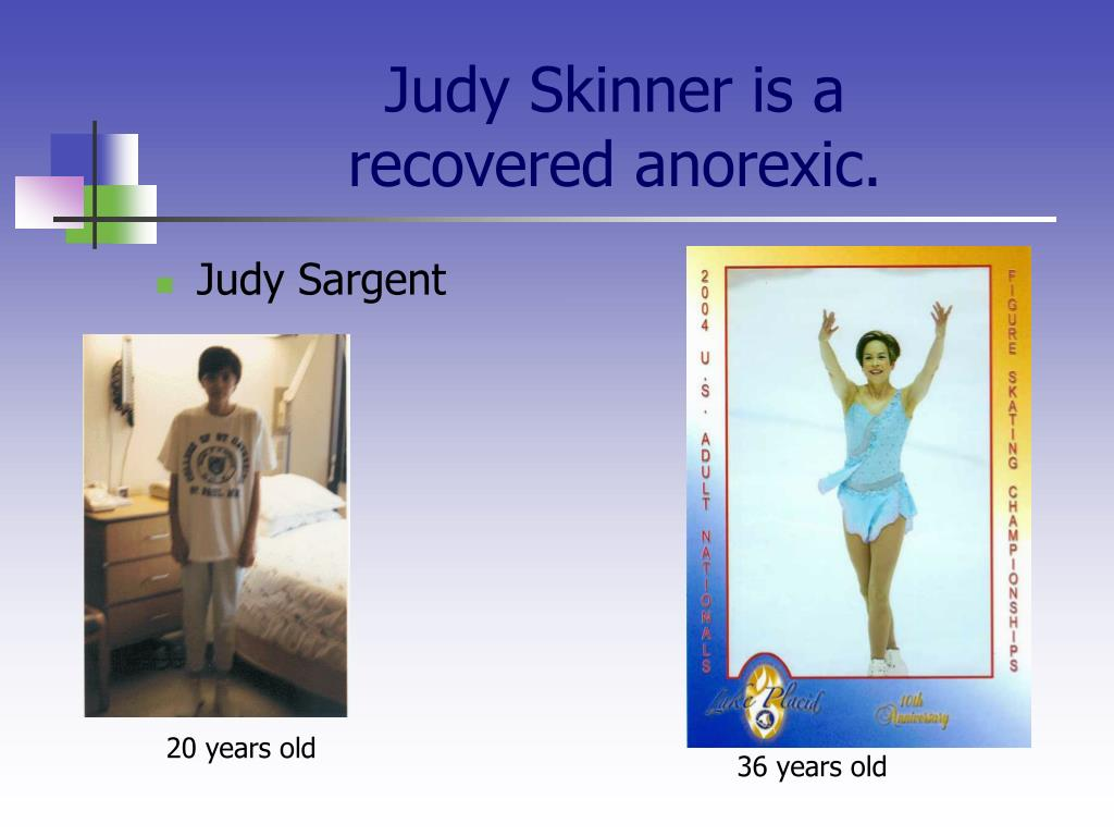 Judy Skinner is a