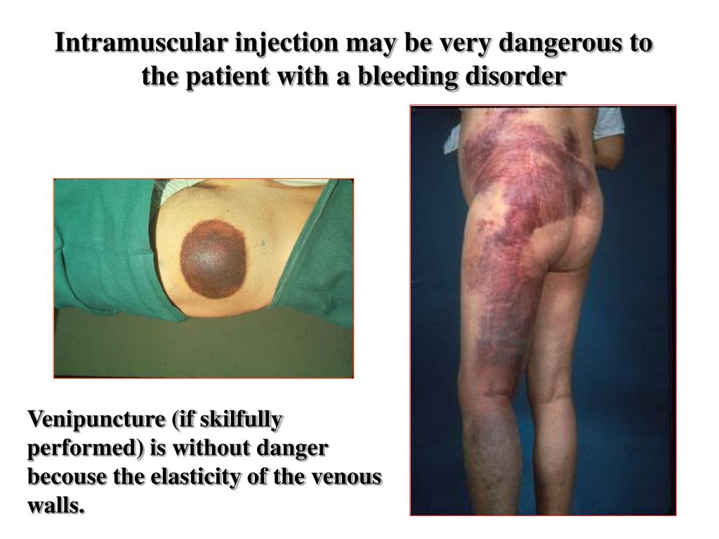 Intramuscular injection may be very dangerous to the patient with a bleeding disorder