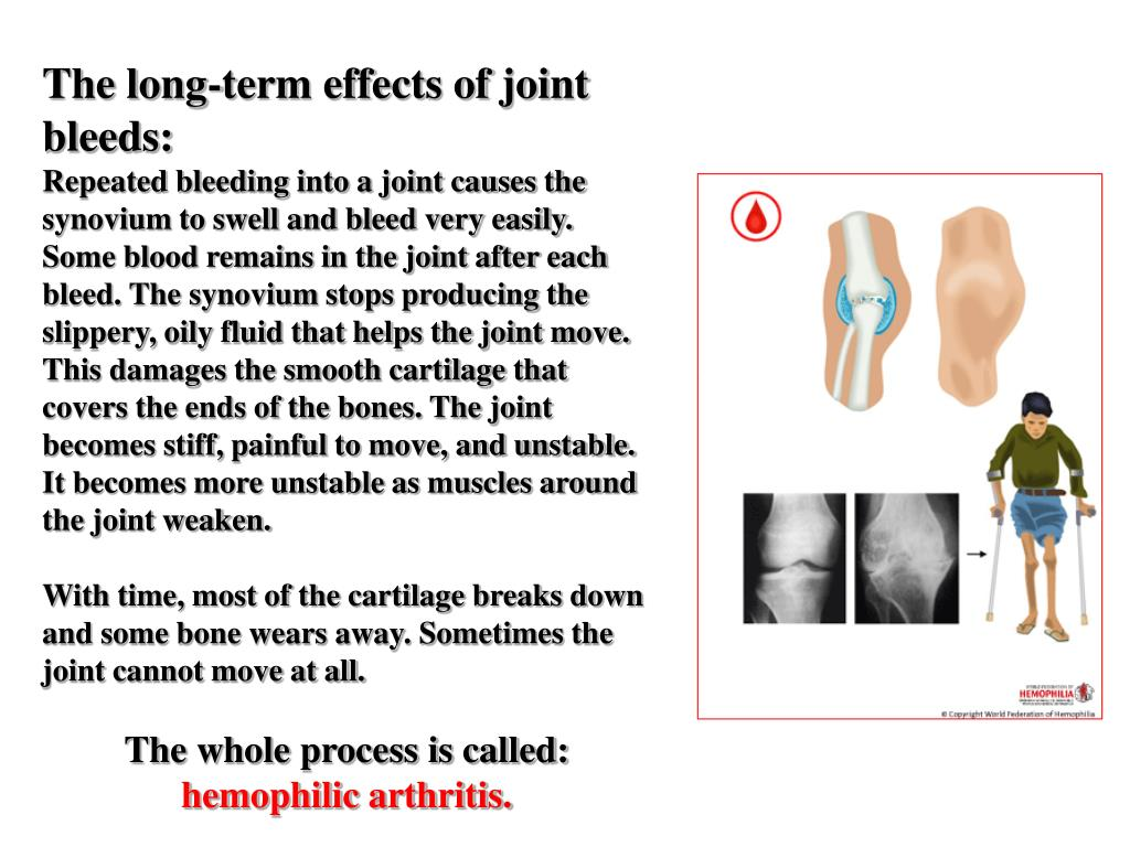 The long-term effects of joint bleeds: