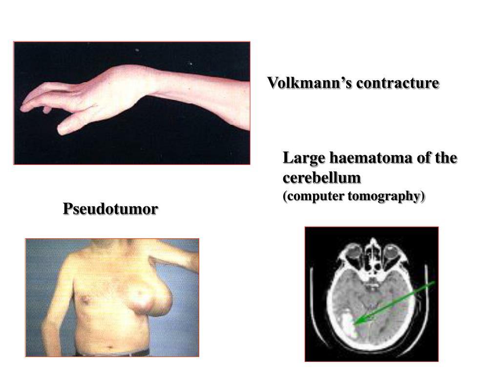 Volkmann's contracture
