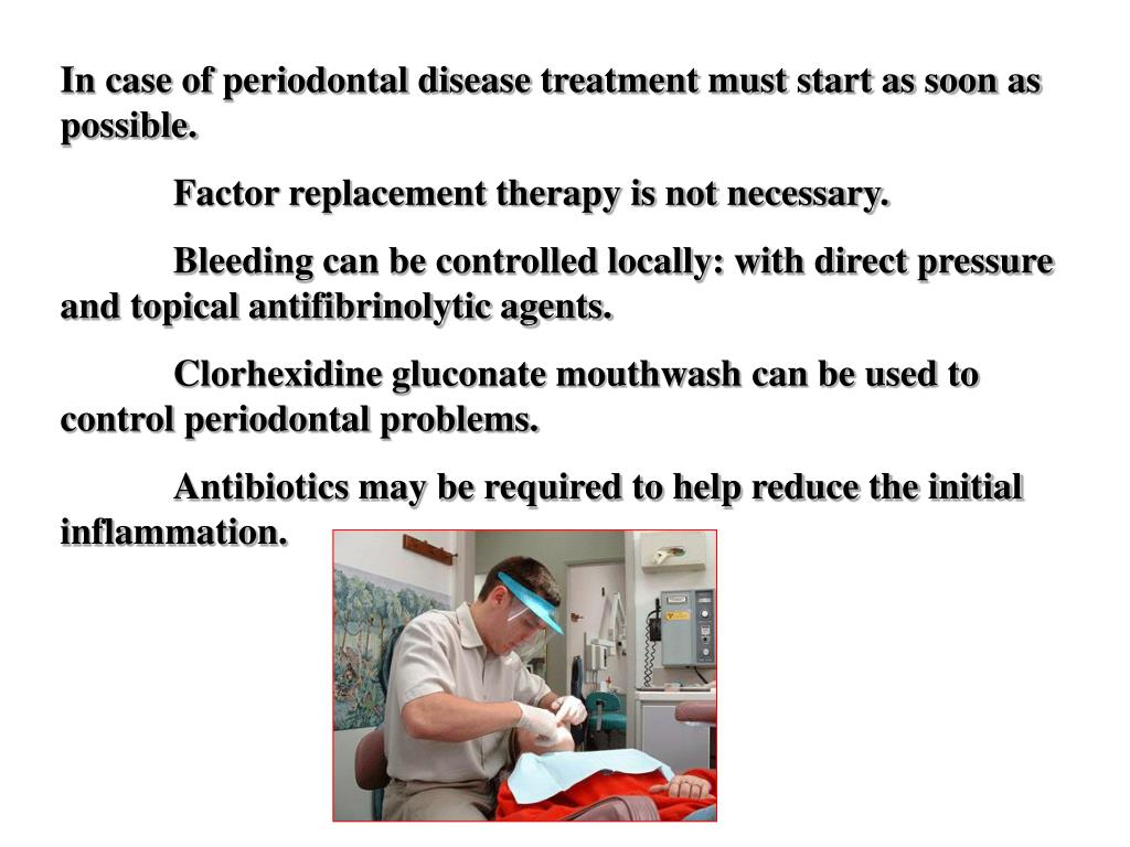 In case of periodontal disease treatment must start as soon as possible.