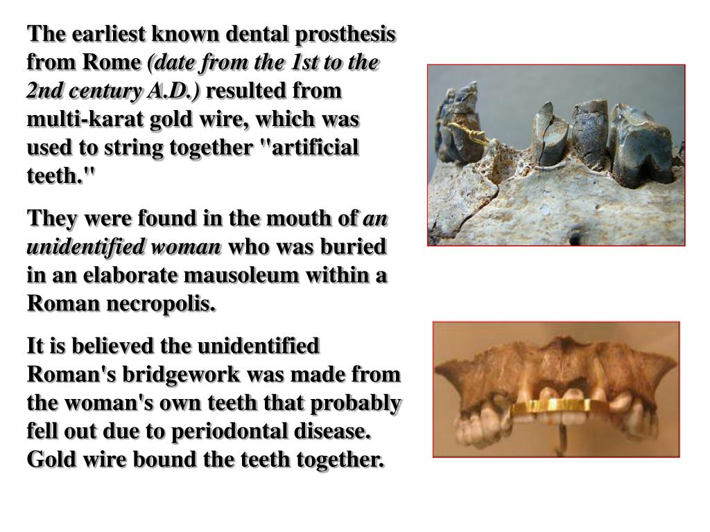 The earliest known dental prosthesis from Rome