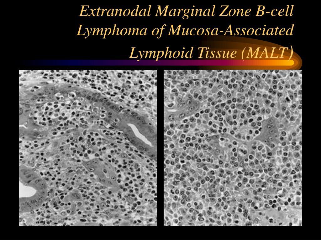 Extranodal Marginal Zone B-cell Lymphoma of Mucosa-Associated Lymphoid Tissue (MALT