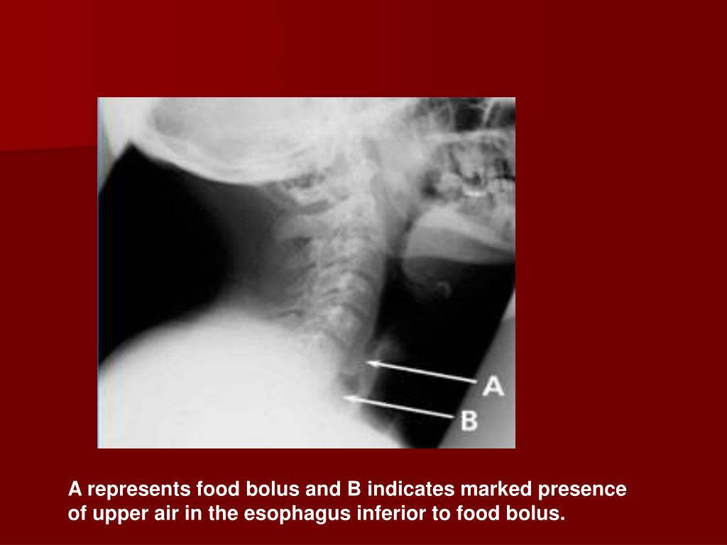 A represents food bolus and B indicates marked presence of upper air in the esophagus inferior to food bolus.