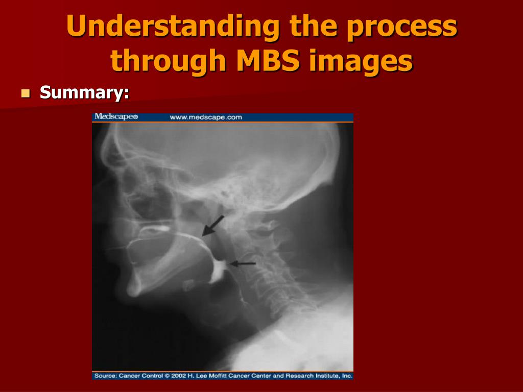 Understanding the process through MBS images