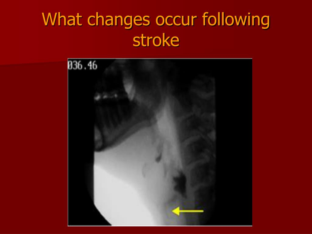 What changes occur following stroke