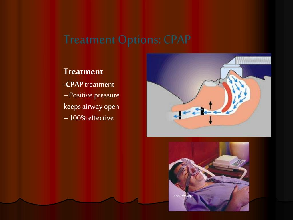 Treatment Options: CPAP