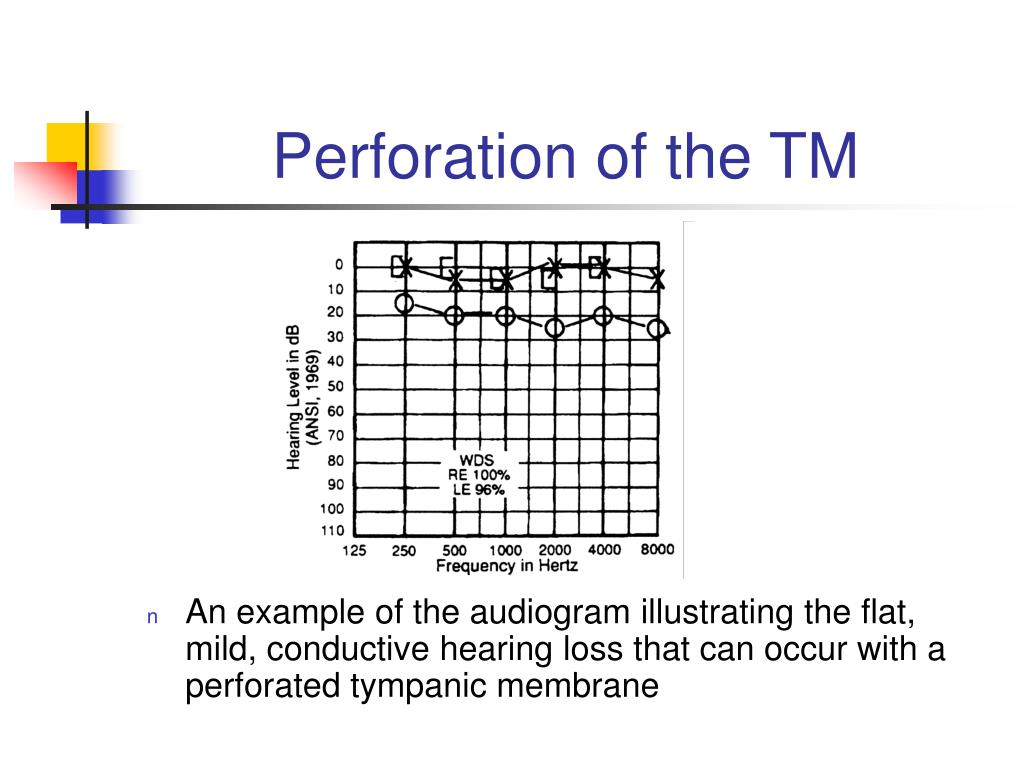 Perforation of the TM