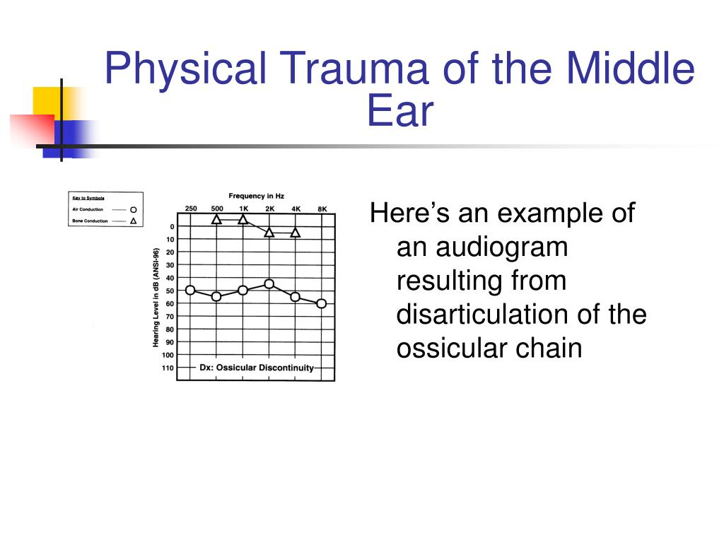 Physical Trauma of the Middle Ear